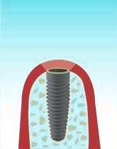 implant_step_03