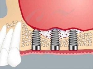 sinuslift-zahnimplant-zahnarzt-muenchen-dr-schmidt